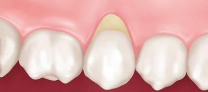 Индивидуальный подбор средств для ухода за зубами в домашних условиях