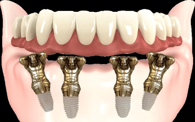Зубы сразу
