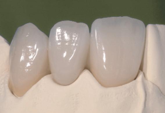 Протезирование безметалловой керамикой