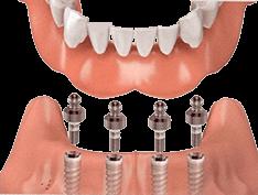Фиксация зубного протеза на индивидуальные абатменты
